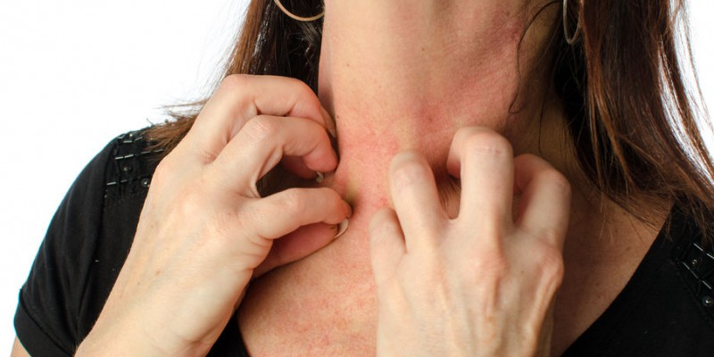 Hooikoorts op je huid
